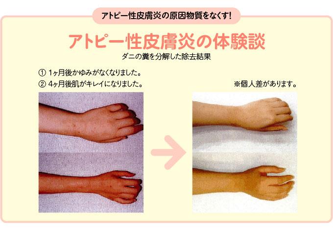 アトピー性皮膚炎の体験談:ダニの糞を分解した除去結果(個人差があります)
